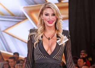 Brandi Glanville 2nd Degree Burns After Cosmetic Treatment Backfires
